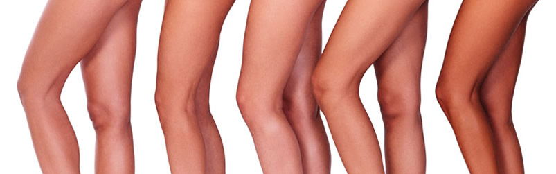 Sclerotherapy Memphis TN